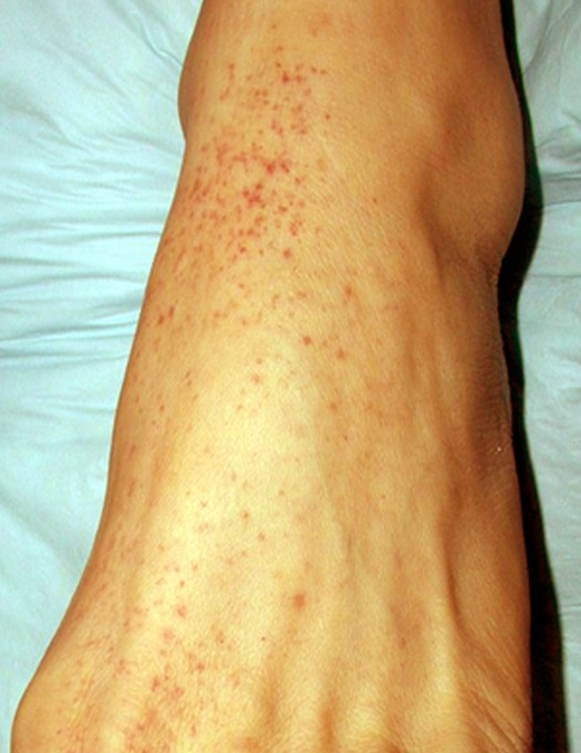 Petechial Rash - Cause...