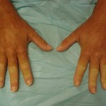 scleroderma picture