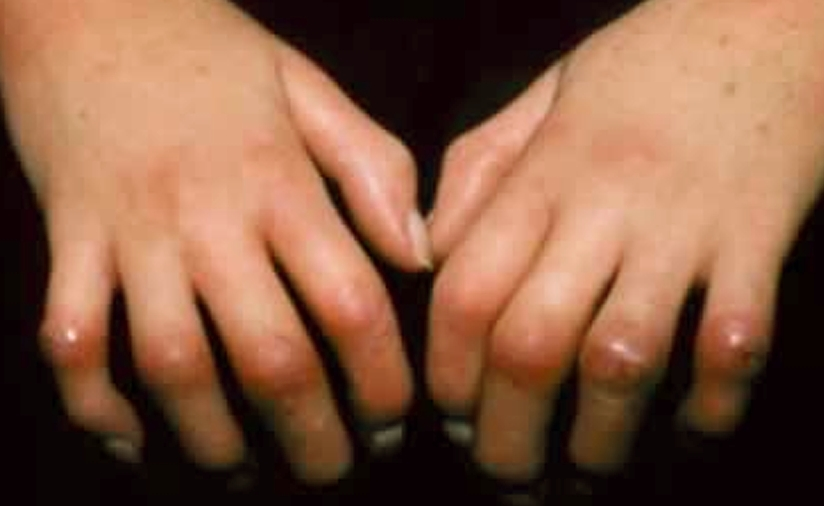 scleroderma pictures