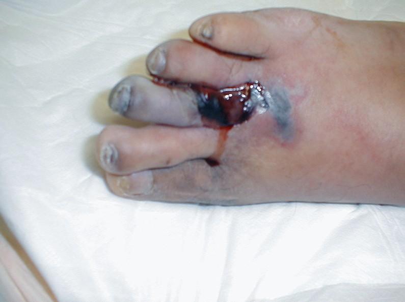 gangrene pictures