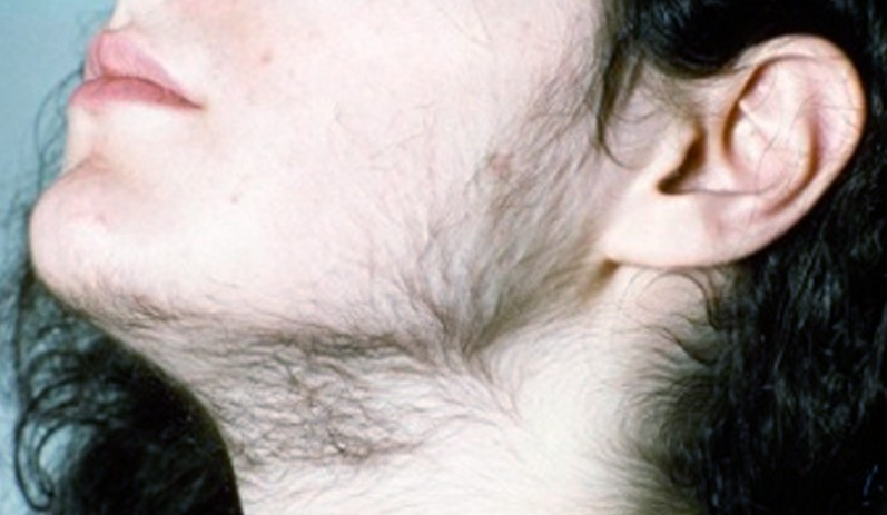 hirsutism - pictures, symptoms, causes, treatment, Skeleton