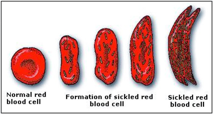 sickle cell anemia a red blood cell disorder Sickle cell disease is an inherited genetic abnormality of hemoglobin (the oxygen-carrying protein found in red blood cells) characterized by sickle (crescent)-shaped red blood cells and.