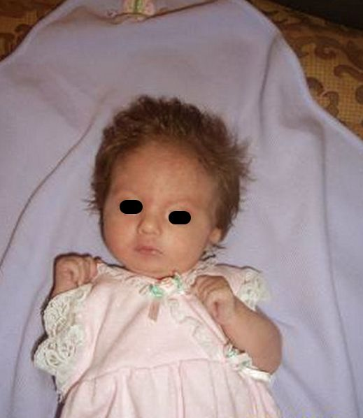 edwards syndrome pictures 2