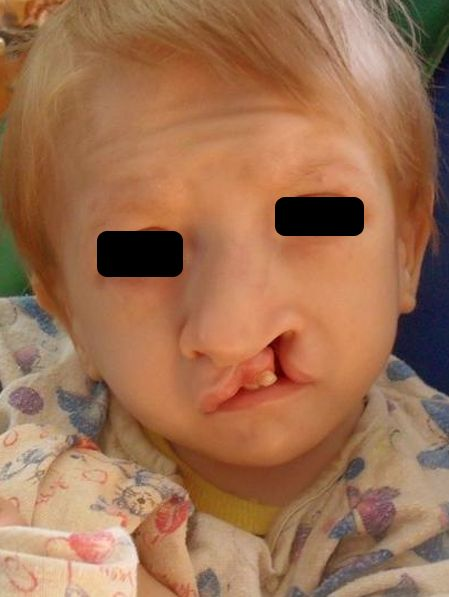 edwards syndrome pictures