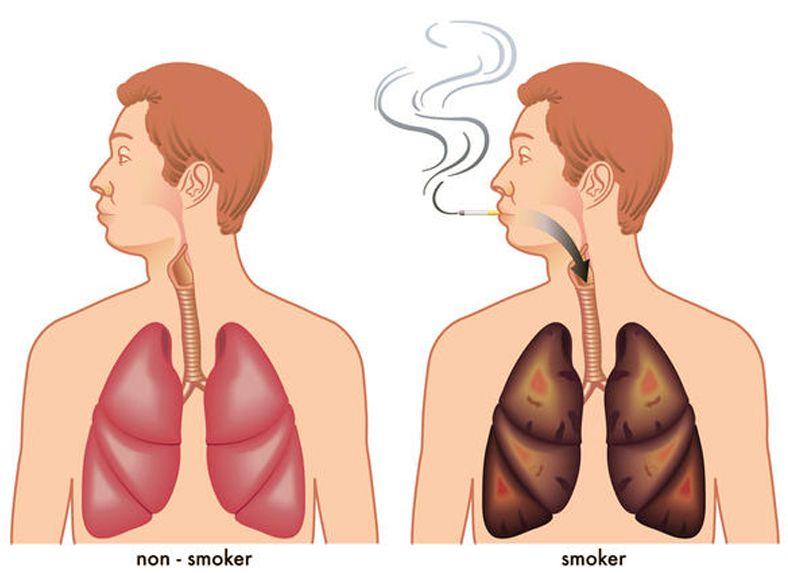 Comment nettoyer les poumons de la nicotine patches