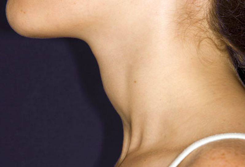 enlarged thyroid pictures 2