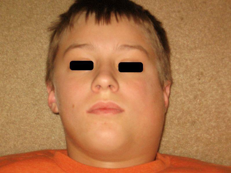 mumps pictures