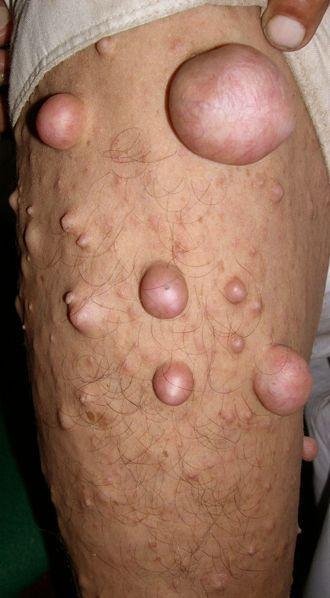 neurofibromatosis pictures
