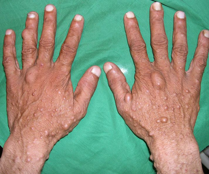 the causes signs and symptoms and treatments of neurofibromatosis a genetic disorder