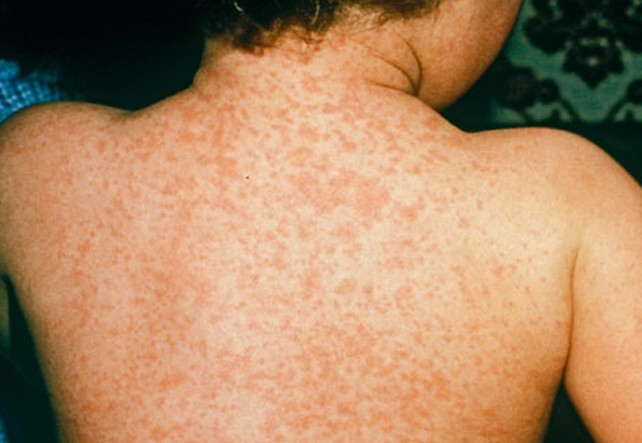 meningitis rash pictures 4