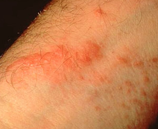 poison oak rash pictures 6