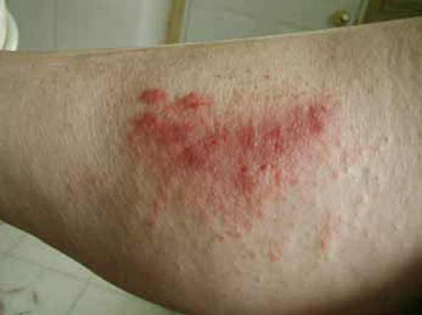 poison oak rash pictures 8