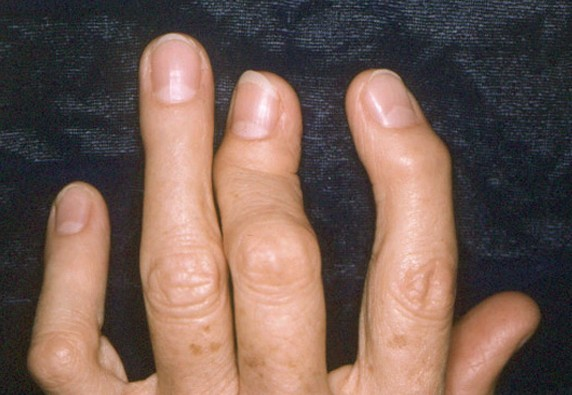 ra symptoms in hands and feet