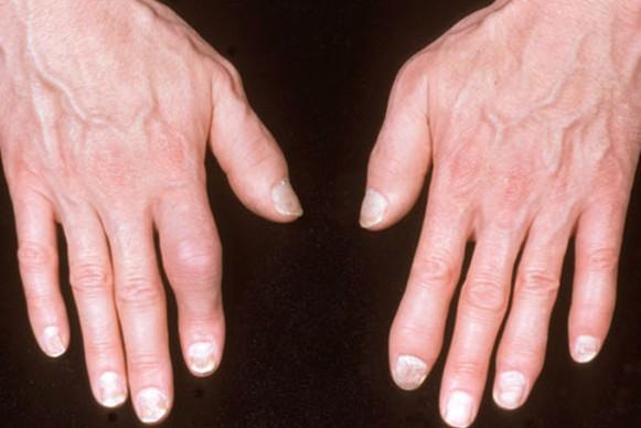 psoriatic arthritis pictures 3