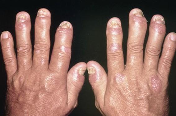 psoriatic arthritis pictures 4