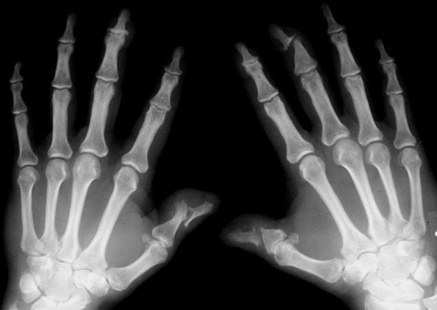 psoriatic arthritis pictures
