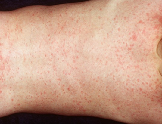 roseola rash pictures 6