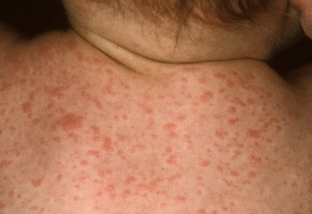 roseola rash pictures 7