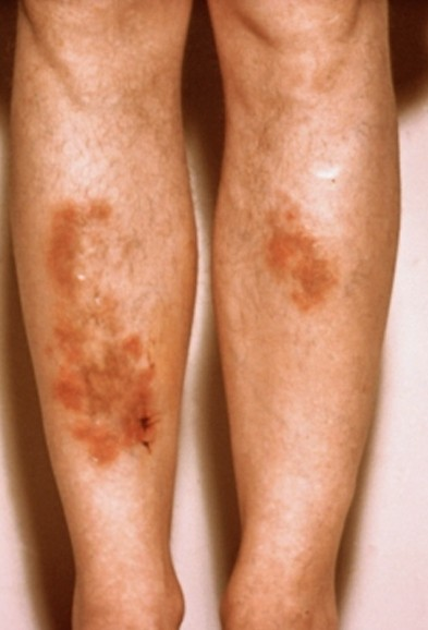 sarcoidosis pictures 2