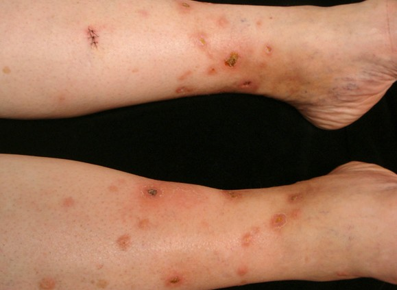 sarcoidosis pictures 4