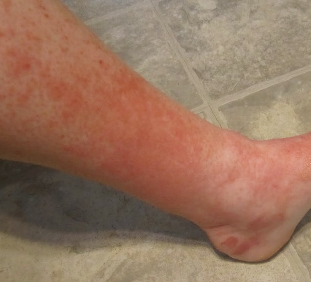 Valley fever leg rash