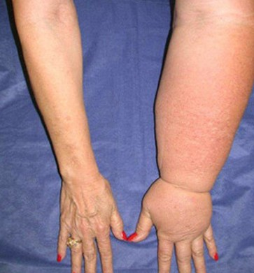Lymphedema - Pictures, Treatment, Causes, Symptoms, Diagnosis