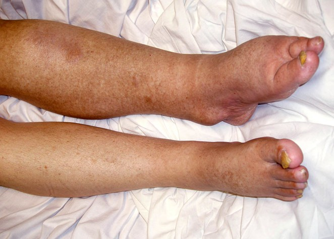 lymphedema pictures