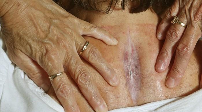spinal meningitis pictures