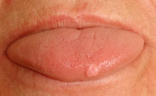 bumps on tongue photos
