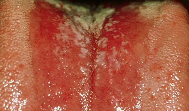 bumps on tongue pictures 2
