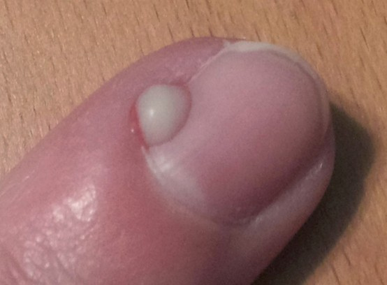 hangnail infection pictures 3