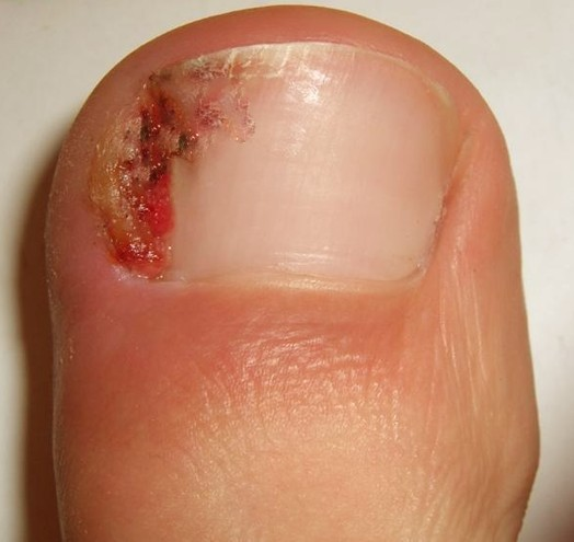 hangnail infection