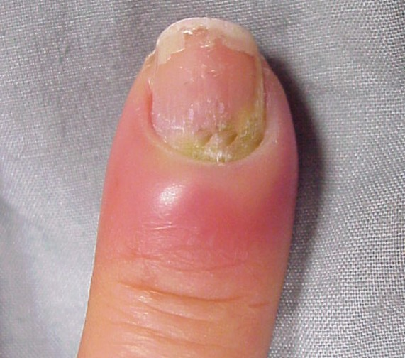 infected hangnail images