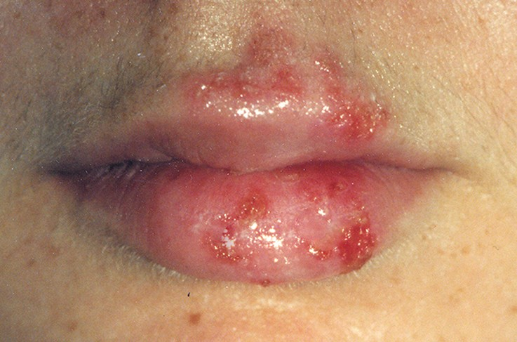 sores on lips pictures 2