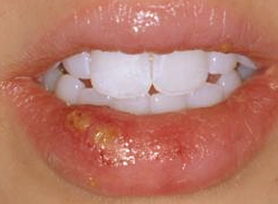 sores on lips pictures 4