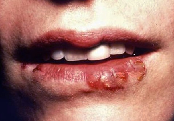 sores on lips pictures 5