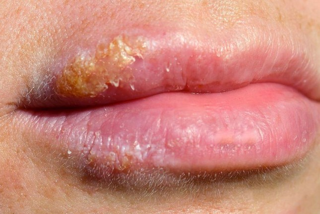 sores on lips pictures
