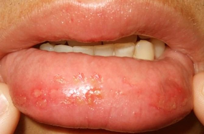 Image Gallery infected lips from biting